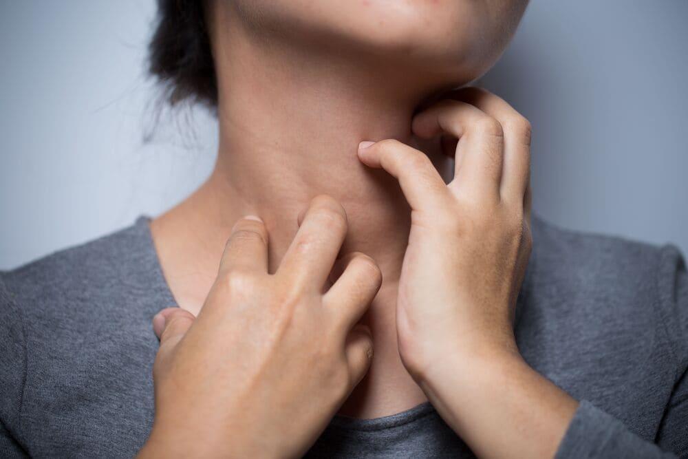 Что такое атопический дерматит: как проявляется и можно ли вылечить